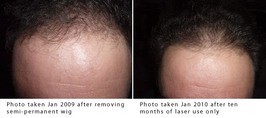Thinning hair stopped